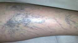 Varisli bacak