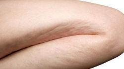 Kadın bacağında selülit